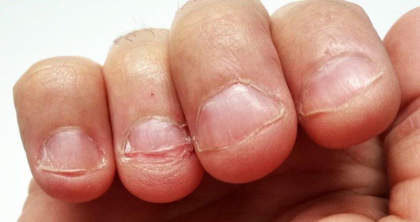 Nail biting finger damage