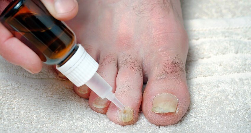 Over the Counter Toenail Fungus Treatment Reviews