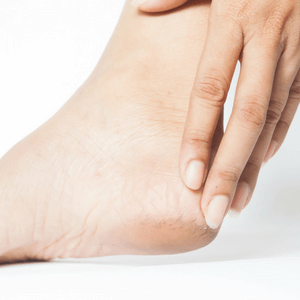 Best Foot File for Cracked Heels and Our Reason Why [2018]