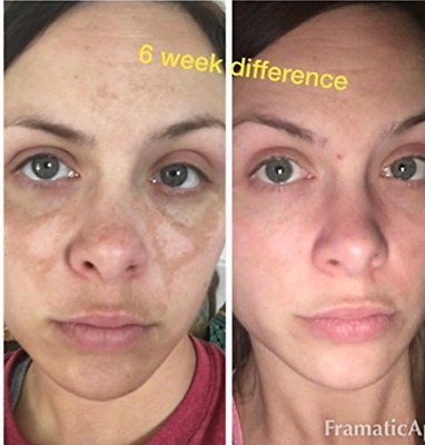 2% Hydroquinone Dark Spot Corrector Remover before and after