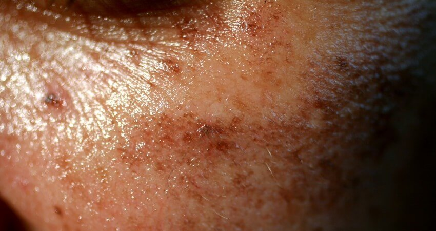 Pigmented dark spots on the face. Pigmentation on cheeks