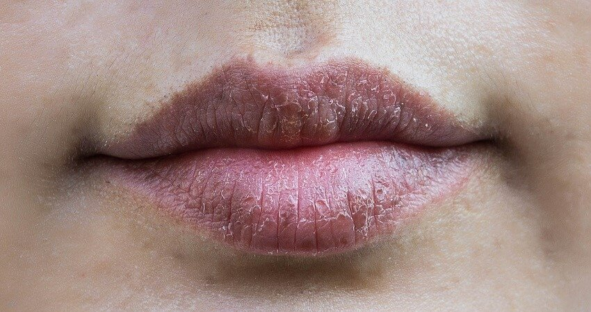 why are my lips dark around the edges