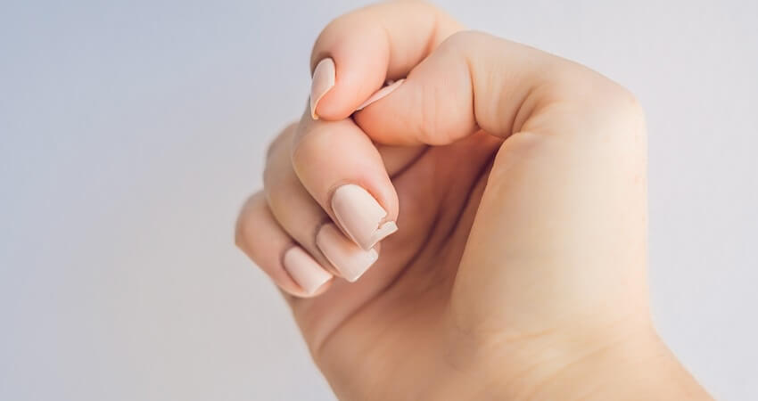 Broken nail on a woman's hand with a gel manicure