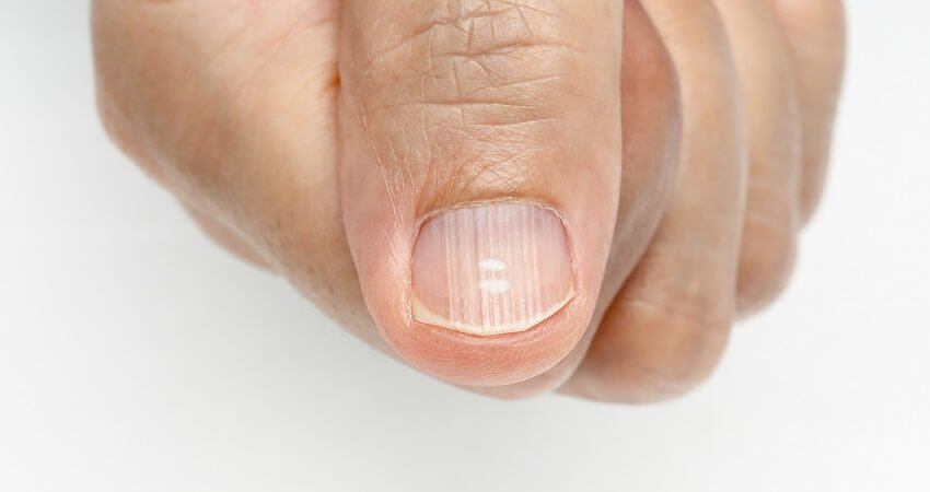 Vertical nail ridges symptoms (1)