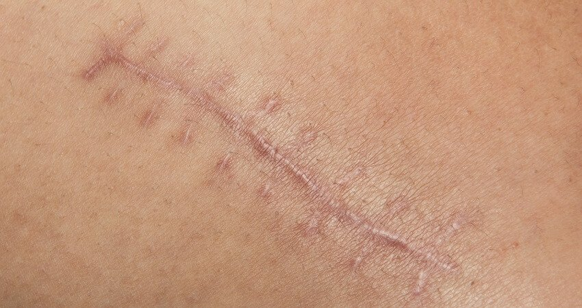 how to cover a scar with makeup