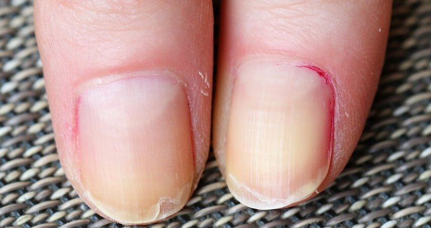 how to stop nails from peeling