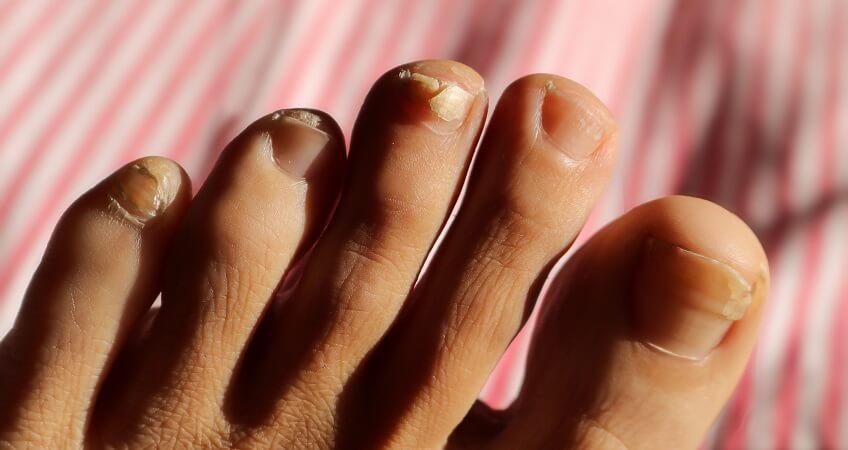 peeling and splitting nails