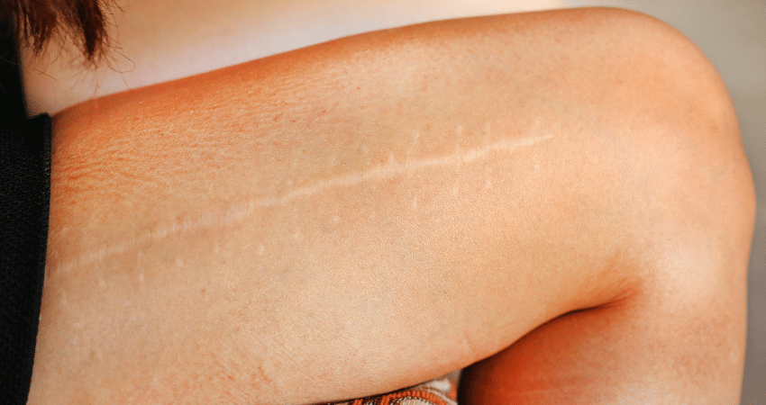 scar gel sheets