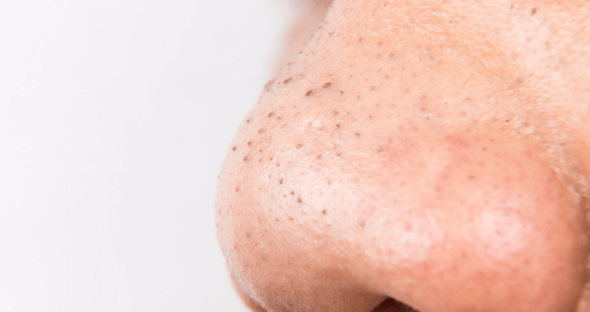 how to remove deep blackheads