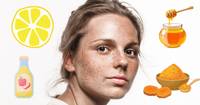 How to remove freckles naturally