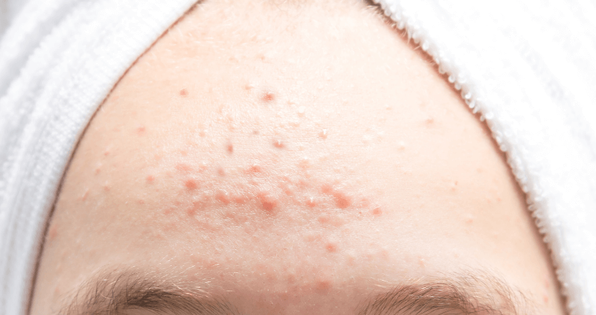 home remedies to get rid of small bumps on forehead