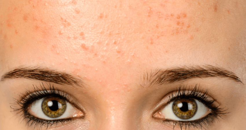how to get rid of small bumps on forehead